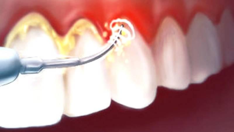 carie-e-pulizia-dei-denti-1